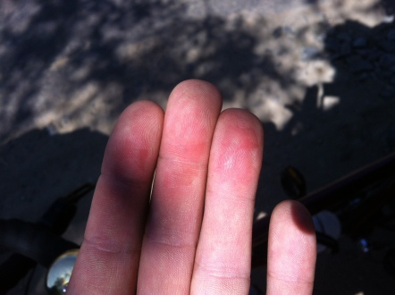 the single stupidest bike moment... i checked how much my discbreak heated up on the way down a long and winding steep slope...